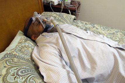 sleep apnea 428x285